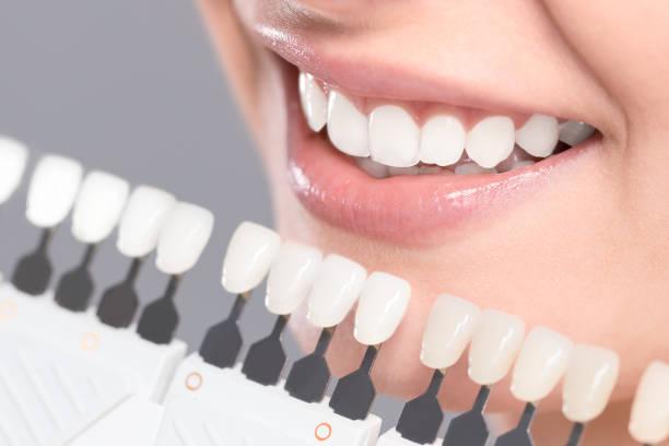 soñar con dientes nuevos
