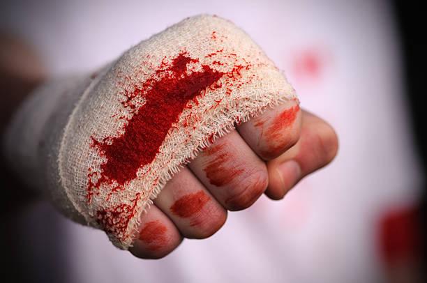 soñar con sangre de menstruación